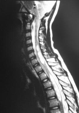 Sagittal MRI shows an Arnold-Chiari I malformation