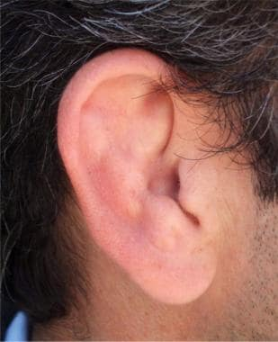 Cauliflower ear.