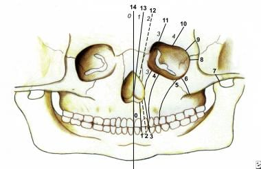 This drawing shows bone clefts in the Tessier clas