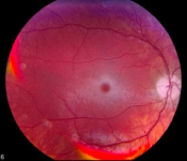 Fundus photograph showing retina changes associate