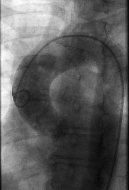 Aortogram obtained with a 6F pigtail catheter show