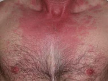 An example of a typical histamine toxicity rash, i