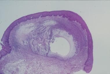 Low-power photomicrograph of a mucocele with atten