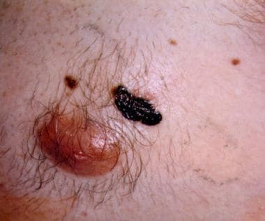 Superficial spreading melanoma, left breast, 1.3-m
