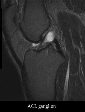 Ganglion of the anterior cruciate ligament. Courte