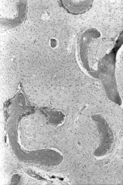 Histologic appearance of fibrous dysplasia, reveal