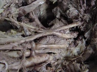 Traumatic brachial plexus injury. Human cadaveric