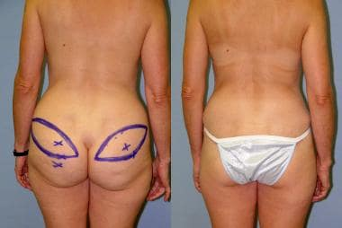 Before and after superior gluteal artery perforato