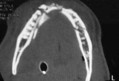 Axial CT scan demonstrating multiple fractures of