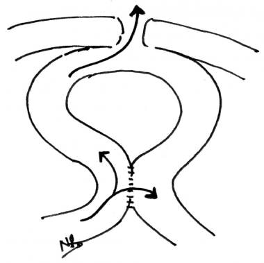 Bypass of a densely adherent fistula by anastomosi