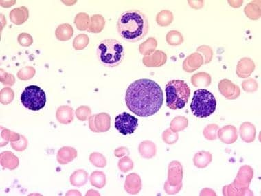 Chronic myelogenous leukemia. Blood film at 1000X