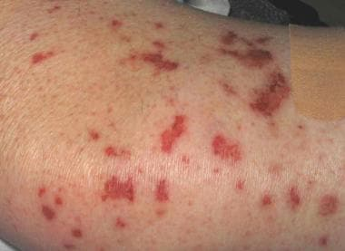 The skin rashes of Churg-Strauss syndrome. The bio