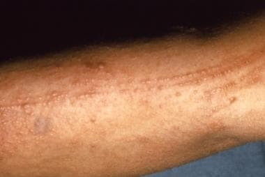 Poison oak rash. This photograph depicts an indivi