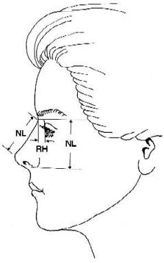 Nasal length (NL) represents the distance from the