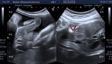 Ultrasound of fetal abdomen showing anterior wall
