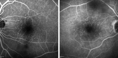 Fluorescein angiography: Fundus angiography in the
