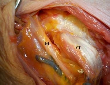 The musculocutaneous nerve (M) is identified near