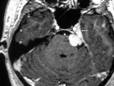 Trigeminal schwannoma. Axial contrast-enhanced T1-