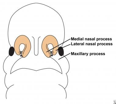Illustration depicts fusion of the lateral nasal,