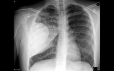 Chest radiograph that reveals a lung abscess, a co