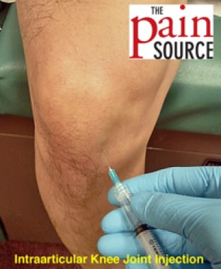 Knee Injection Technique: Approach Considerations, Procedure