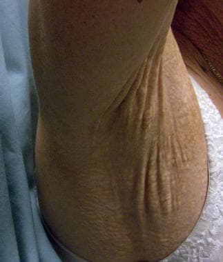 Laxity and redundant skin folds in the axilla.