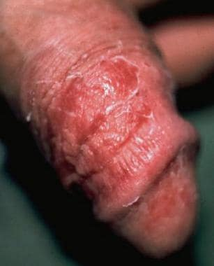 Dry, red, superficially scaly, pruritic macules an