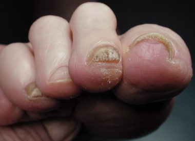 Callus at tip of second claw toe.