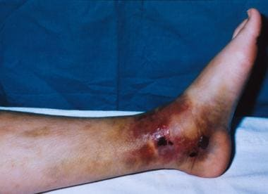 Soft-tissue trauma, with blister and area of press