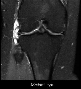 Meniscal cyst. Courtesy of James K. DeOrio, MD, La