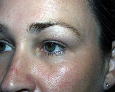 Postoperative view after anchor blepharoplasty of