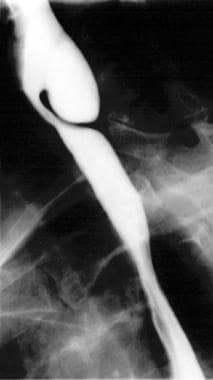Zenker diverticulum, lateral view.