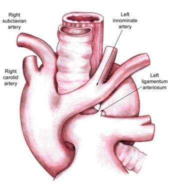 Right aortic arch with mirror-image branching and