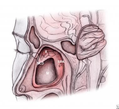 Sagittal illustration of transnasal endoscopic med