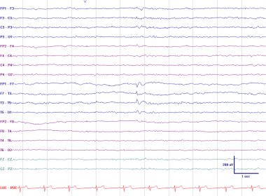 Left anterior temporal spike. This EEG was recorde