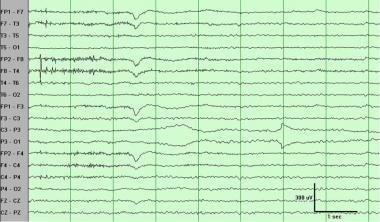 Electrode (impedance) artifact at parietal electro