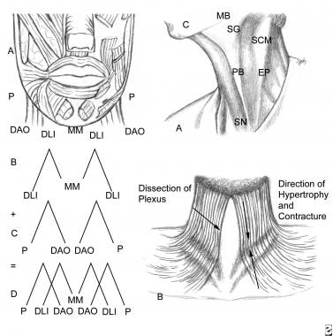 The anatomy of the muscles of the lower lip can be