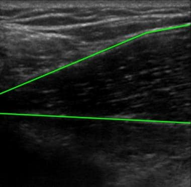 Ultrasonographic image of muscle tissue (outlined
