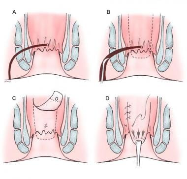 Anorectal advancement flap. A) Transsphincteric fi