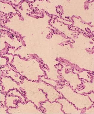 Microscopic picture of emphysematous lung (hematox