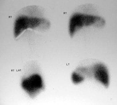 Technetium-99m sulfur colloid scans in a 38-year-o