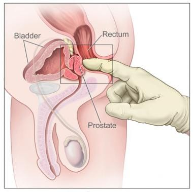 Digital rectal examination. Drawing shows gloved a