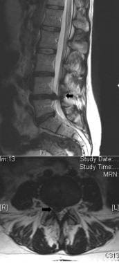 Patient with a large right L4/5 disc herniation