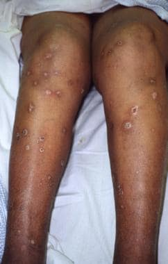 Typical ecthyma lesions of the lower extremities.