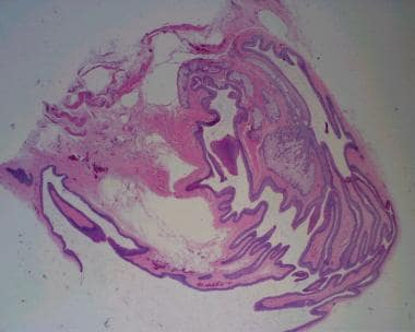 Note the sebaceous glands within the cyst wall (2X