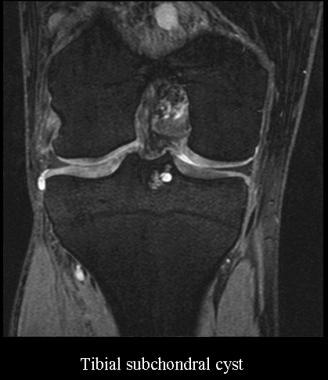 Tibial subchondral cyst. Courtesy of James K. DeOr