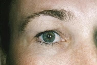Preoperative view of the opposite eye in a patient