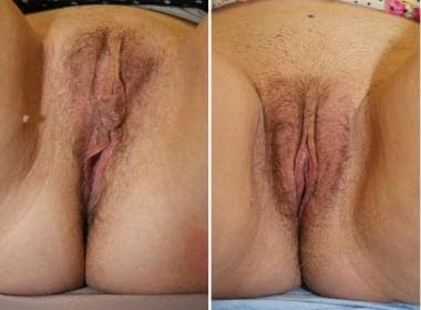 Wedge excision results. Before (left) and 3 months