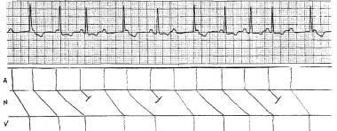 Variable-ratio Mobitz I atrioventricular block. No