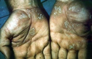 Lichen planus. Courtesy of Walter Reed Army Medica